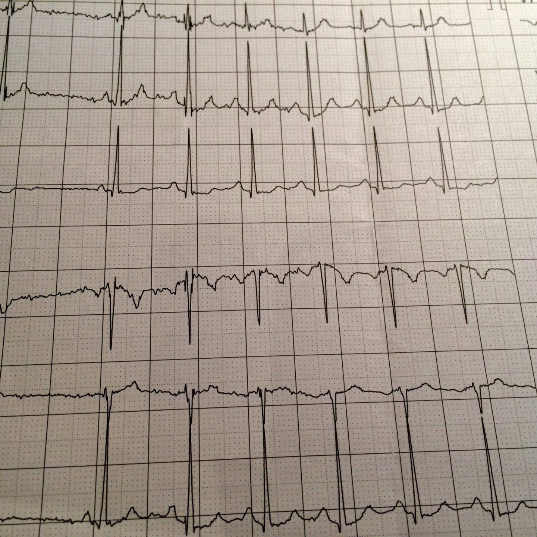 Cardioloog – met resultaat