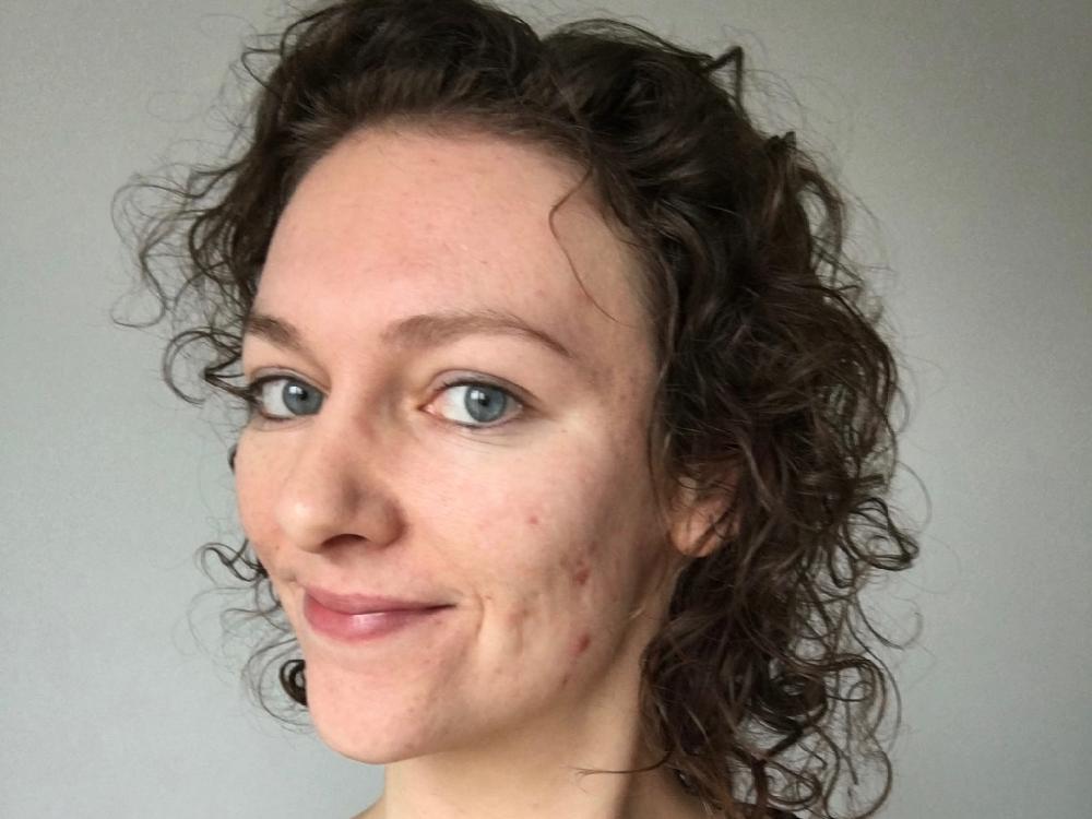 zonder make-up, ernstige acne voor en na foto's